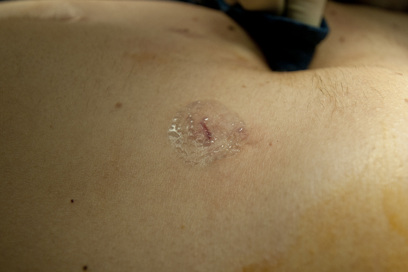 Dermabond dressing on laparoscopic incisions