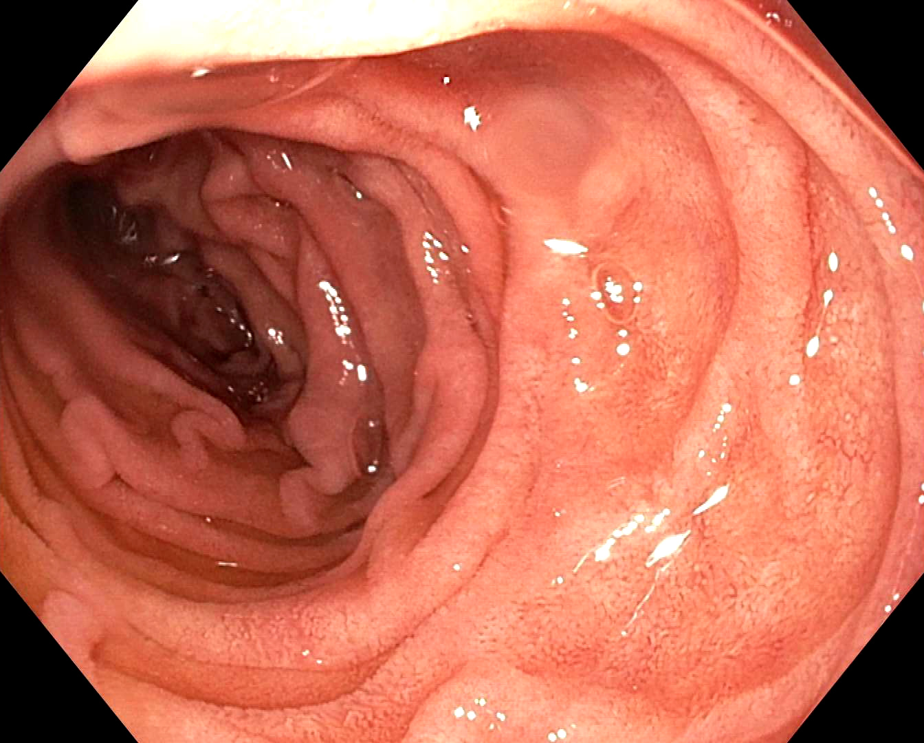 Endoscopic view of duodenum