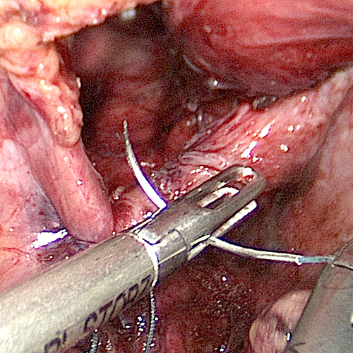 Diaphragmatic hernia being laparoscopic sutured