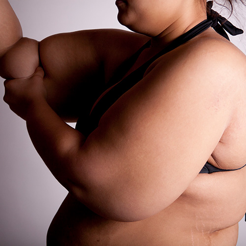 Extra skin in the arms after bariatric surgery