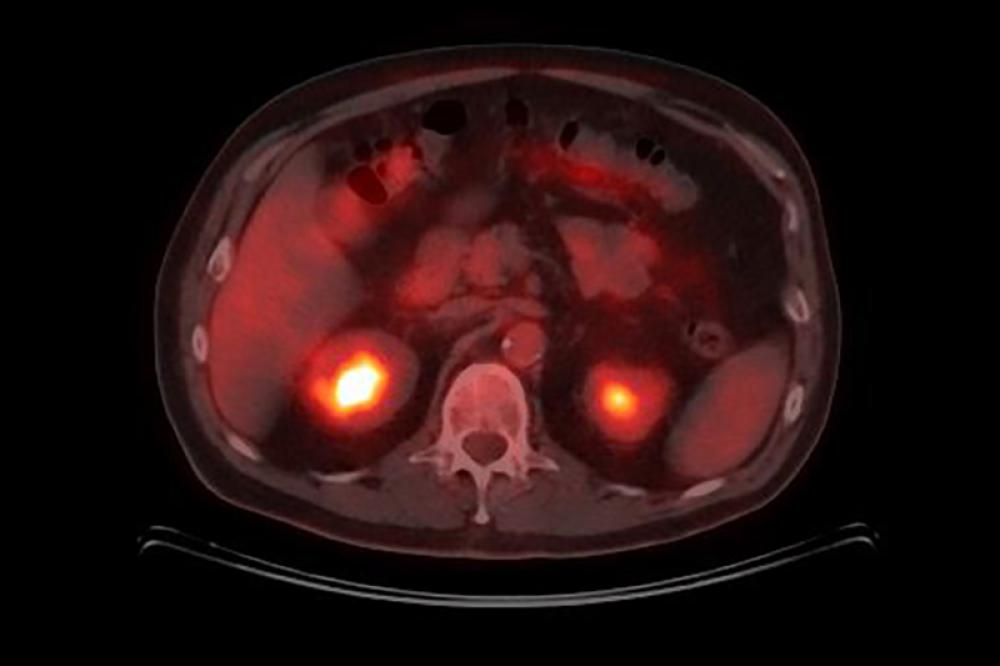 PET Scan para Cáncer