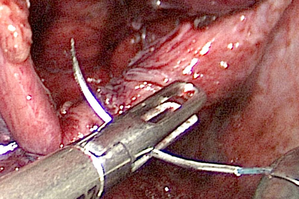 Diaphragmatic hernia being repaired with laparoscopic suturing