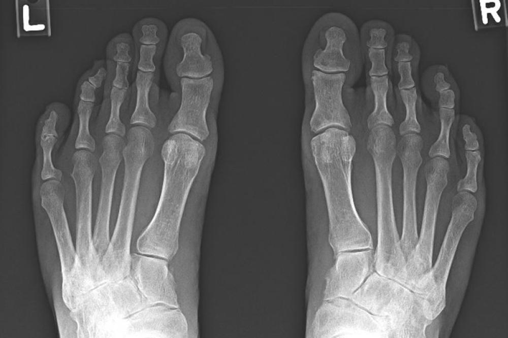 X-ray showing osteoarthritis of the feet